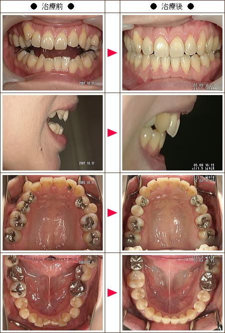 歯の開口矯正症例(ユキ様 女性)