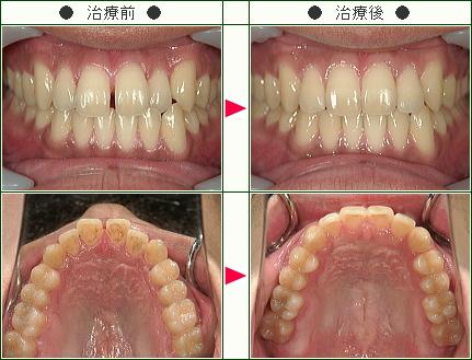 前歯のすきっ歯矯正症例(D.S様 24歳 男性)