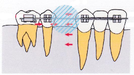 歯を抜いたスペースに歯体移動で動かす