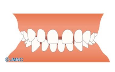 すき間のないところには歯は動かない