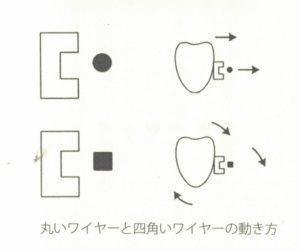ワイヤーによる歯の動かし方