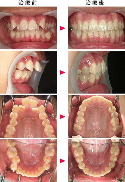 抜かない矯正による出っ歯治療前後の写真18歳女性