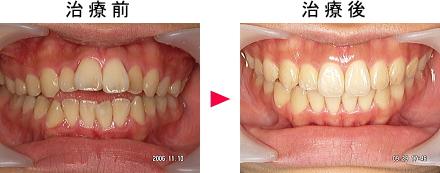 開咬治療前後の症例1
