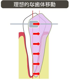 理想的な歯体移動