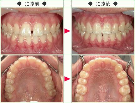 前歯のすきっ歯矯正症例(I様 16歳 女性)