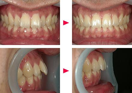 例2 前歯の角度が完全に90度にはならない