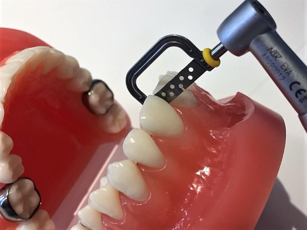 歯と歯の間を削る1