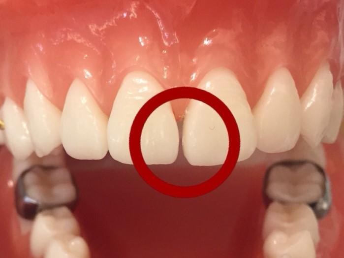 歯と歯の間を削る2