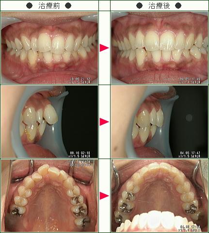 前歯だけのデコボコ症例(M.T様 30歳 女性)