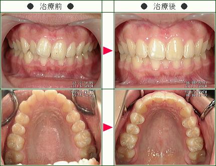 前歯だけのデコボコ症例(佐川様 16歳 女性)