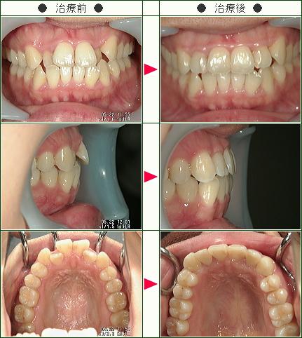 前歯だけのデコボコ症例(吉田様 28歳 女性)