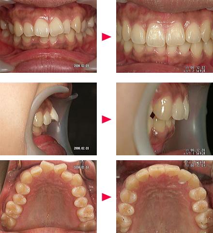 出っ歯症例の治療解説A様