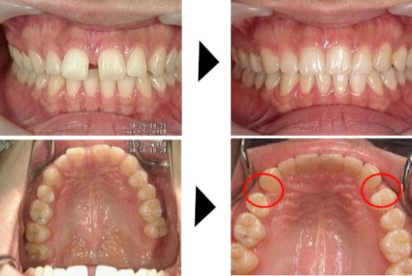 部分矯正ですきっ歯を治す 症例2