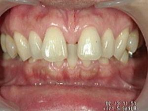 前歯のすきっ歯を簡単に治す