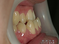 歯を抜かない、顎を切らないで「受け口」を治す!!症例の徹底解説