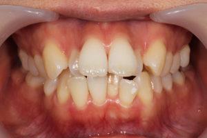前歯が重度のデコボコ